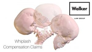 Whiplash Compensation Claim Lawyer Sydney