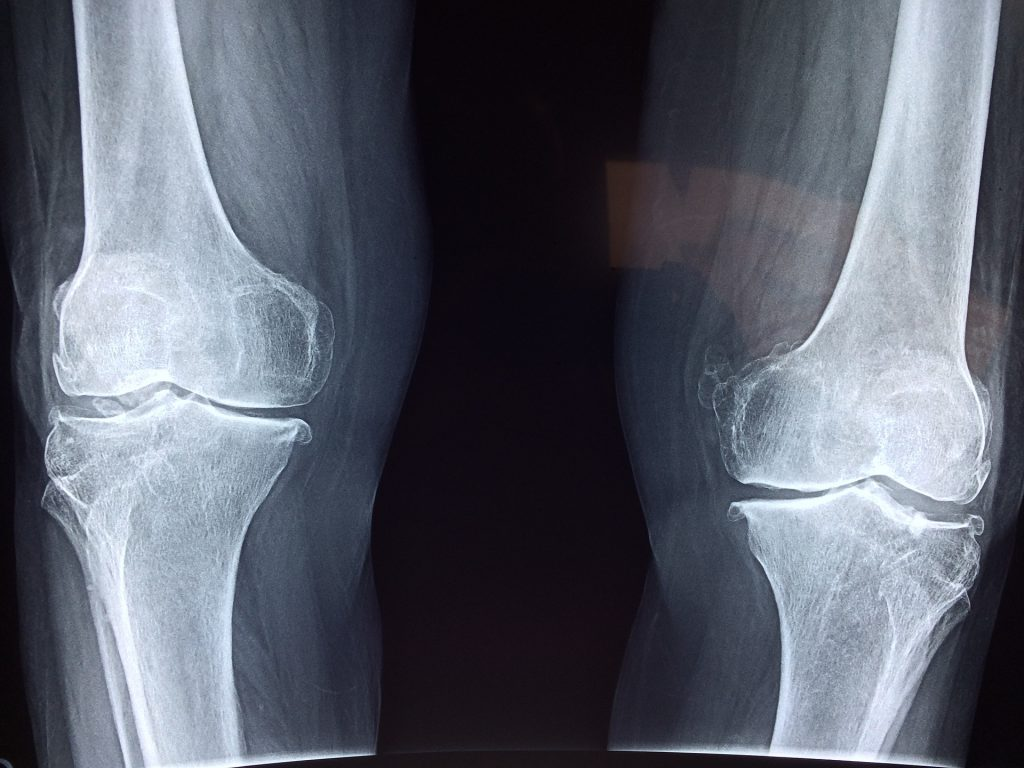 Knee Injury Compensation